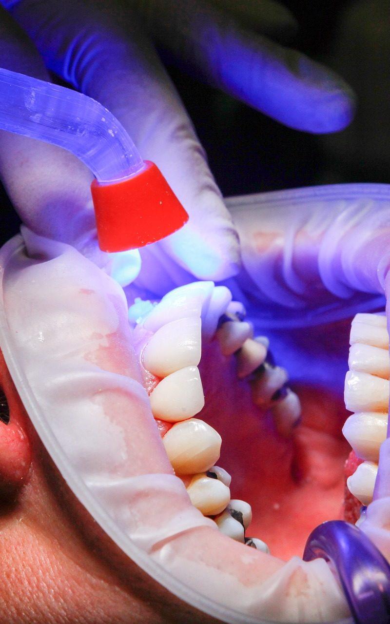 Zła sposób żywienia się to większe braki w zębach oraz również ich zgubę
